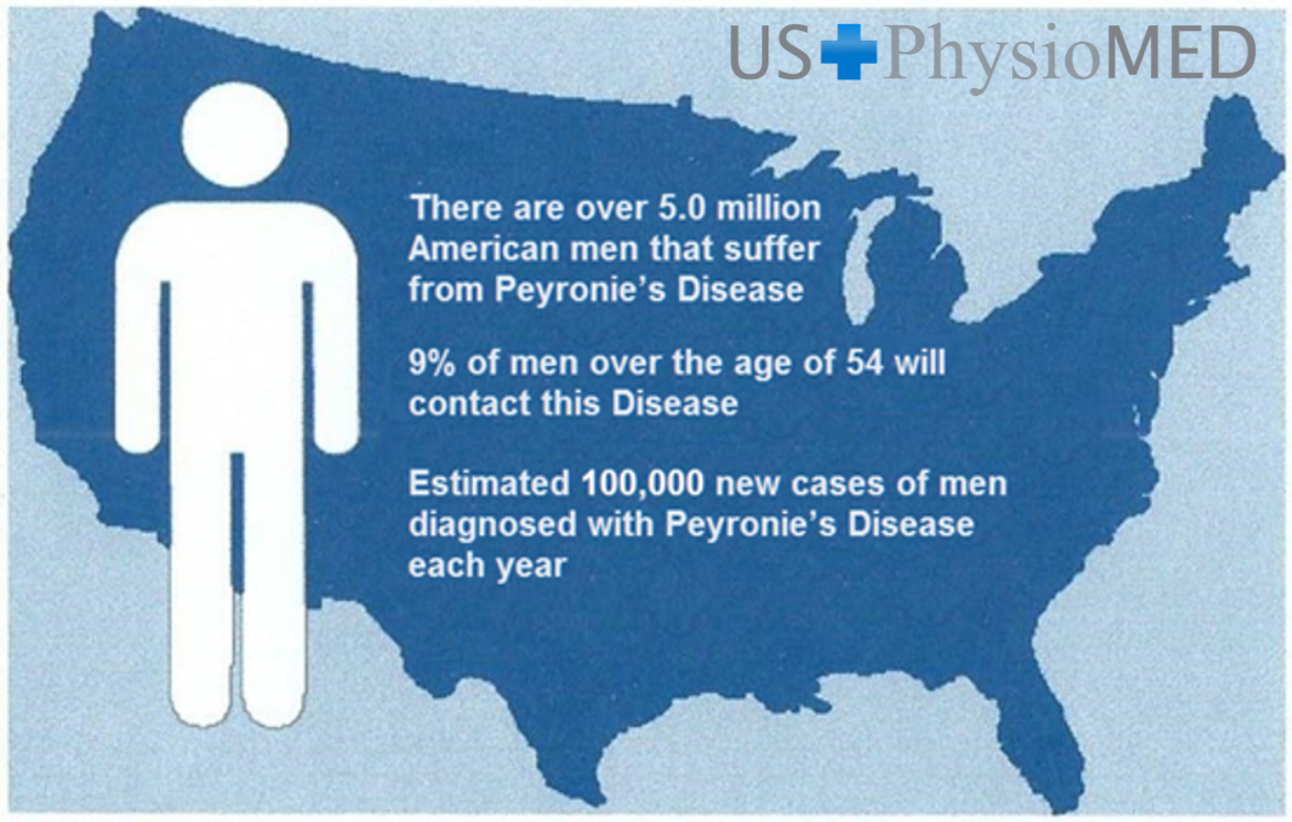Peyronie's Disease, Traction Device, USPhysioMED